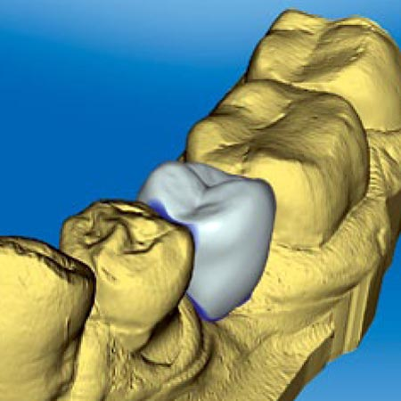 cerec digital impression and placement of a dental crown